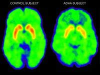Adhd Brain Stimuli Activity Works